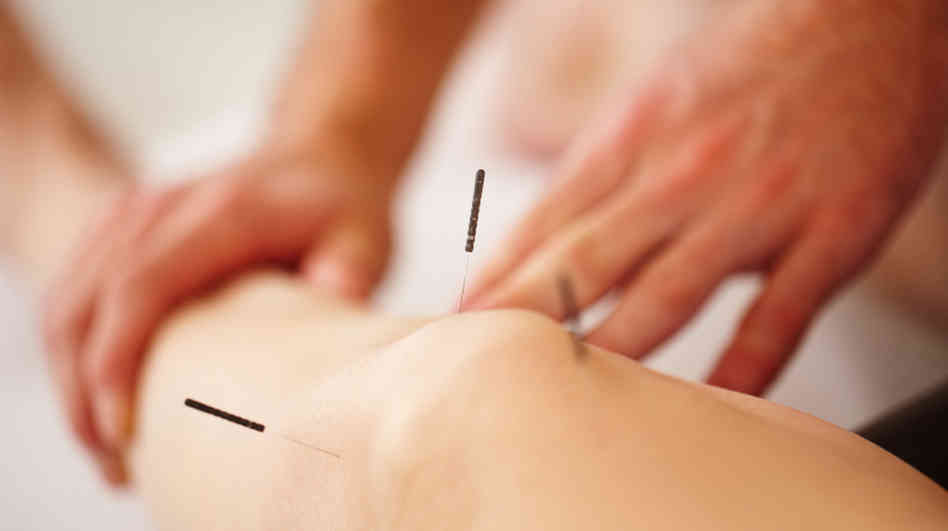 cannington-acupuncture